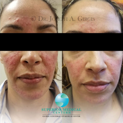 Acne Rosacea Laser Treatment Result after 7days
