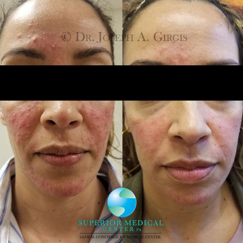 Acne Rosacea Laser Treatment Result after 7 days