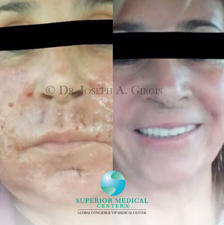 Laser Non-surgical Face lift and skin Rejuvenation