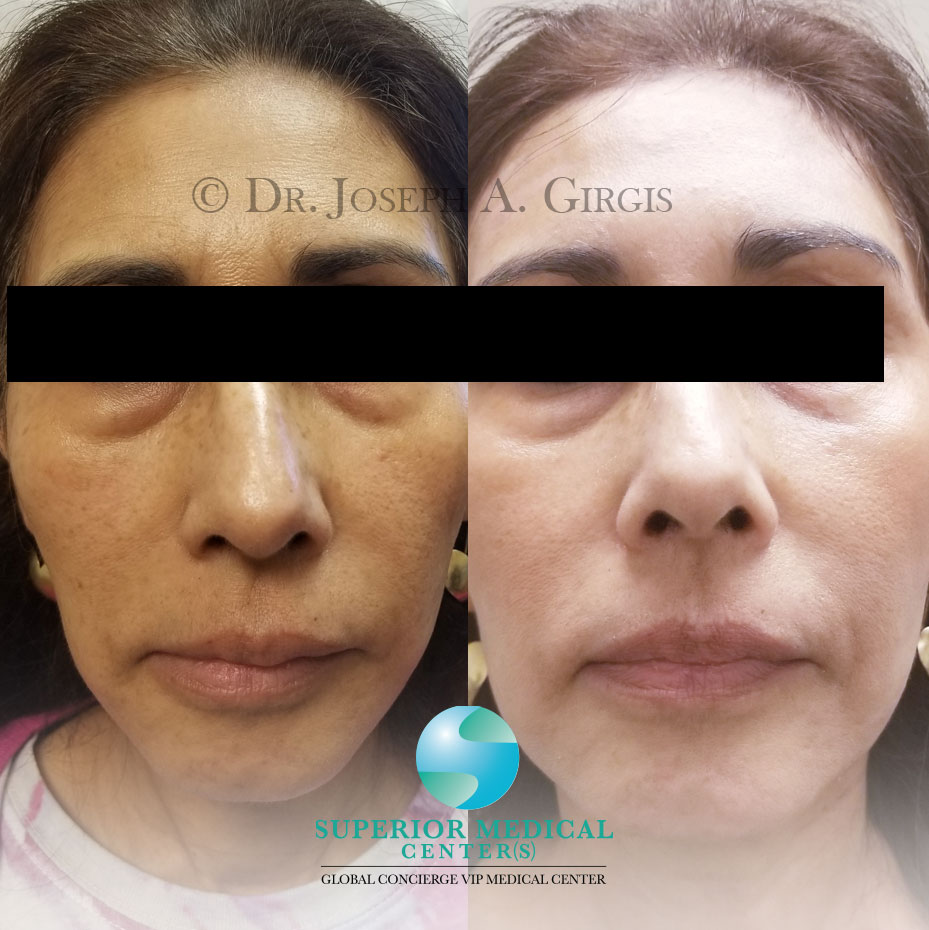 Skin Resurfacing and Rejuvenation