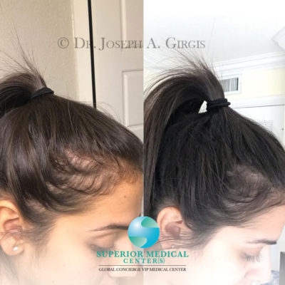 Platelet and Plasma for Scalp Rejuvenation and Hair Regrowth
