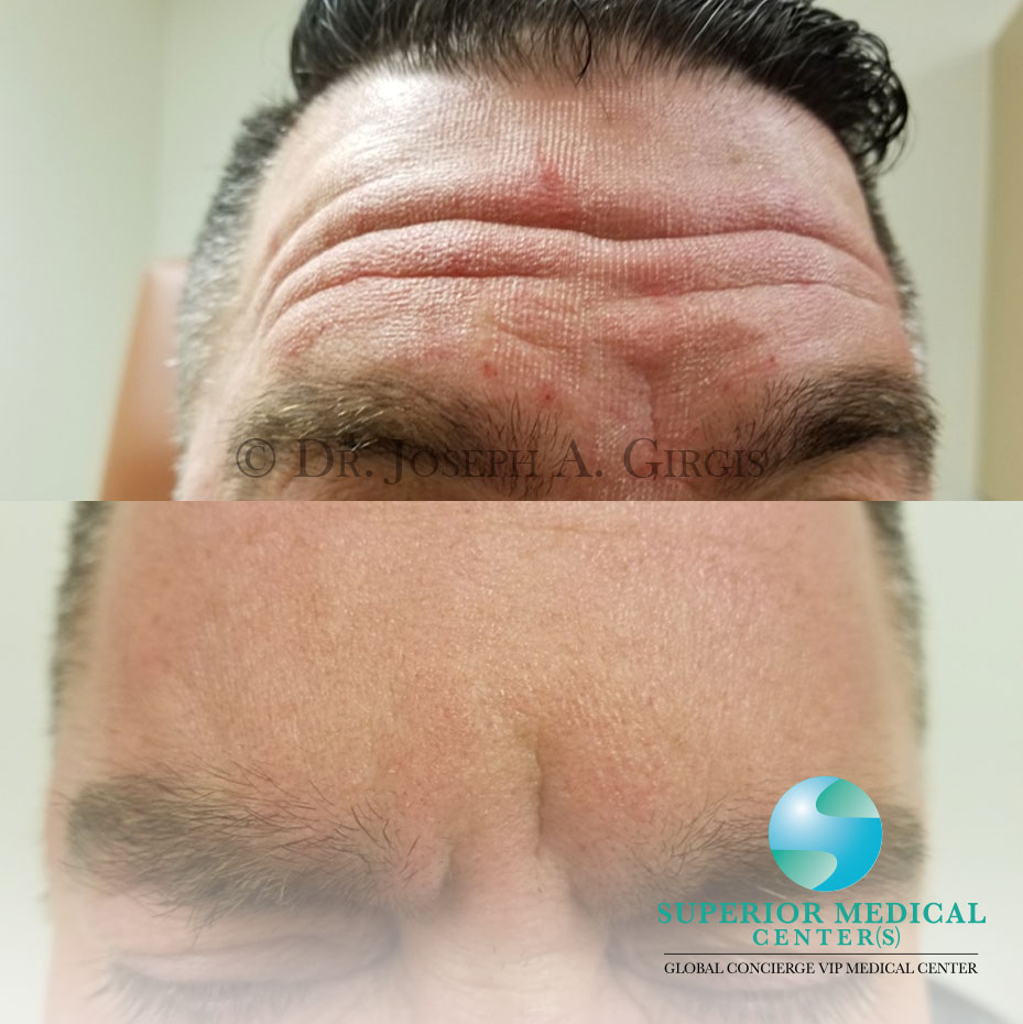 Facial Wrinkles Reduction