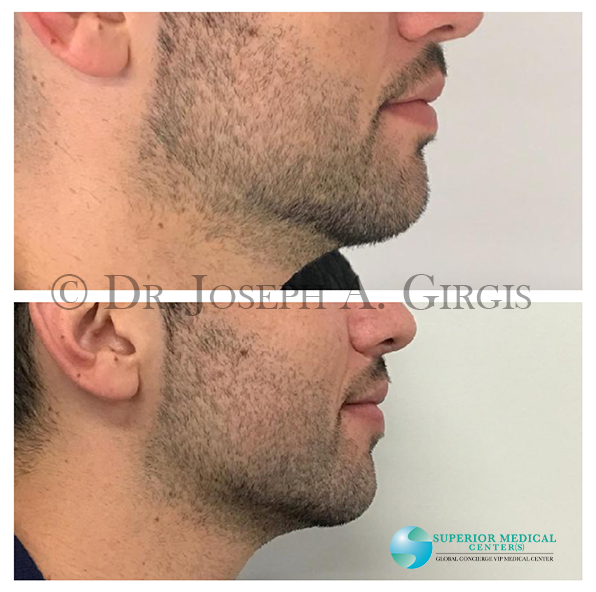 Non Surgical Chin Augmentation