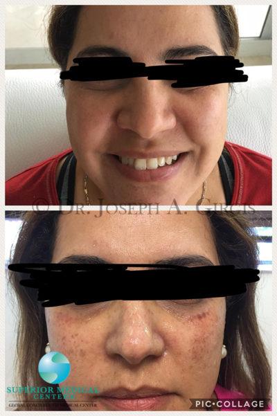 Sun Damage Dark Spot Removal