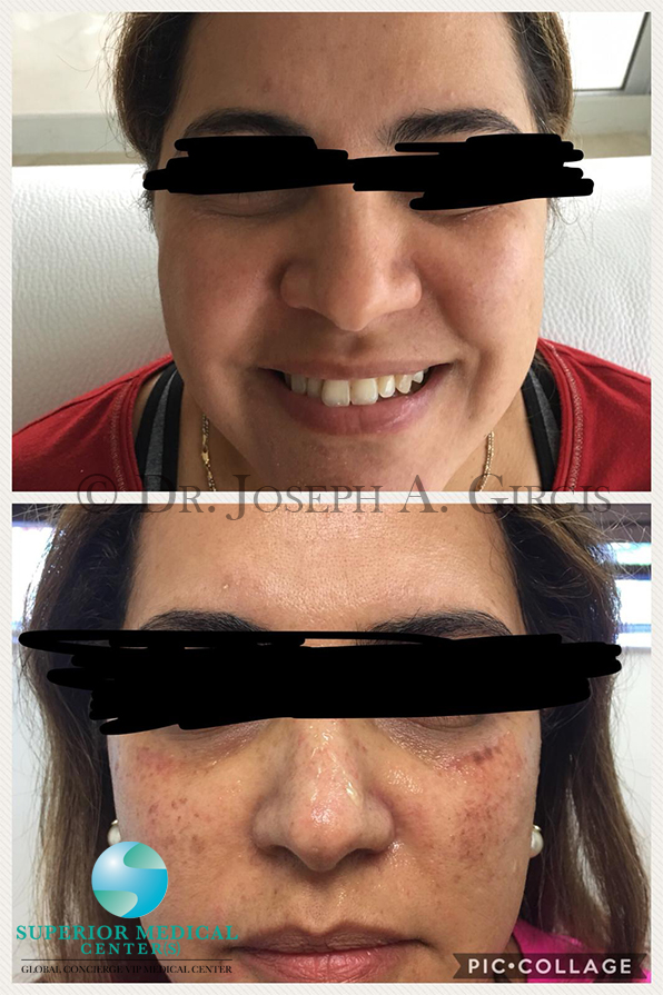 Sun Damage Dark Spot Removal