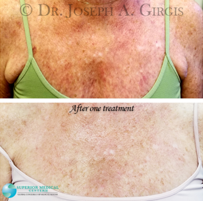 Sun Damage and Dark Spot Removal after 1 treatment