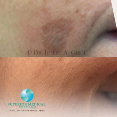 Dark spot and birth mark Removal