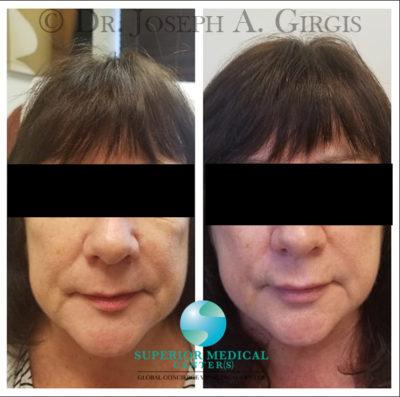 Skin Resurfacing and Rejuvenation